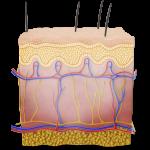 Superficial frostnip illustration